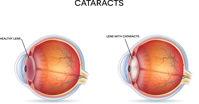 Anatomy of the Eye with Cataracts
