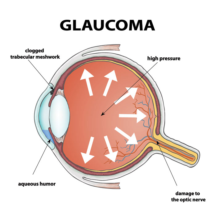 Eye Anatomy of Glaucoma