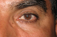 Man with Pterygium After Surgery