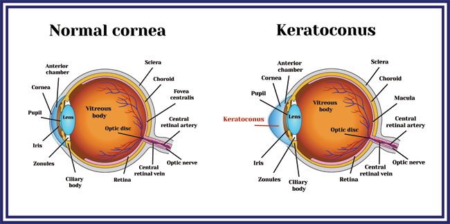 What is Keratoconus?