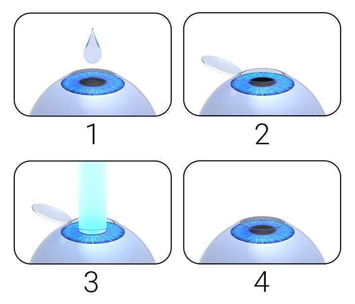 LASEK laser eye surgery procedure