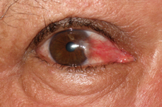 Pterygium Removal - Before Photos
