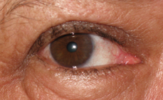 Pterygium Removal - After Photos