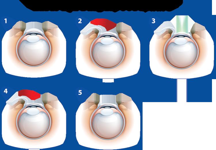 Laser Eye Surgery Procedure - LASIK and LASEK