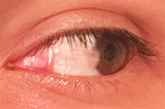 Pterygium Carnosidad Before After Photos