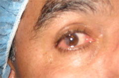 Man with Pterygium Before Surgery
