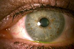 Pterygium Photos After Removal Surgery