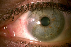 Pterygium Photos Before Removal Surgery