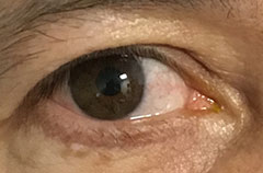 Pterygium removal surgery after July 2020