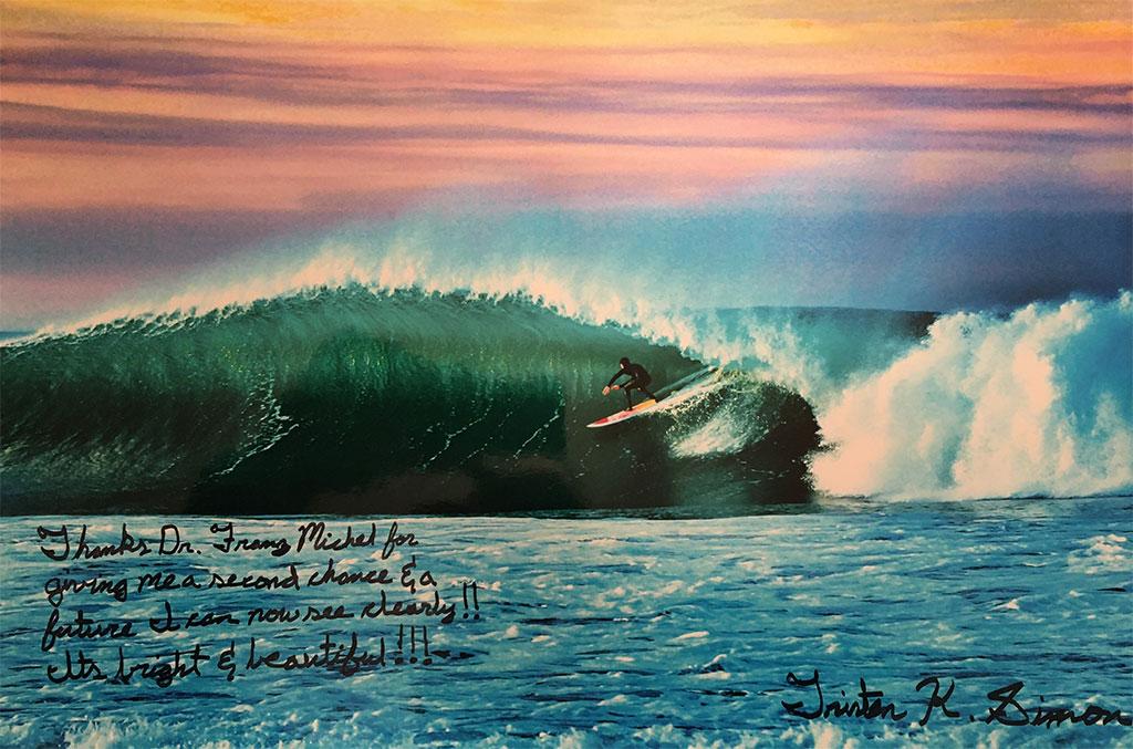 Pterygium surfer patient review