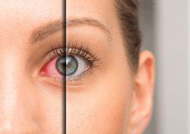 The Link Between Dry Eye and Poor Sleep