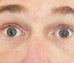 Patient after successful Pterygium removal surgery by Ventura County Lasik