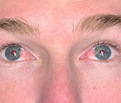 Patient with Pterygium in both eyes before surgery